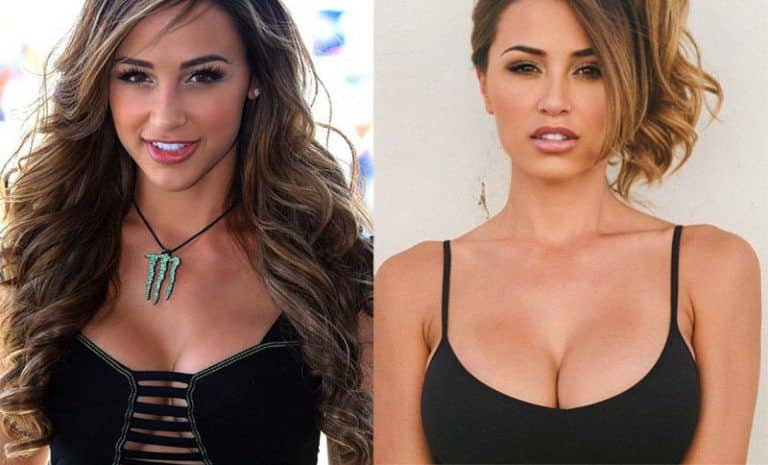 Ana Cheri plastic surgery