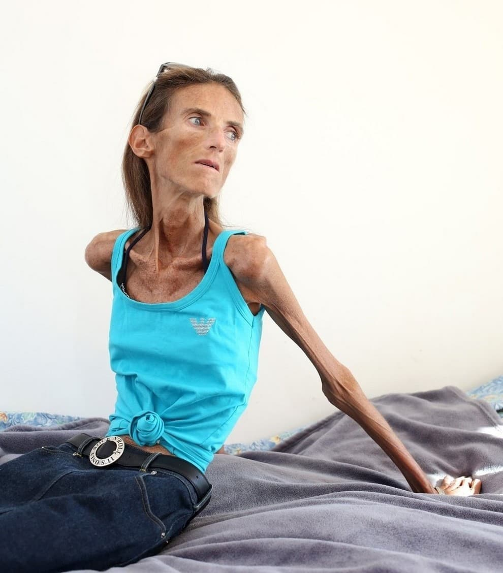 The thinnest woman in the world