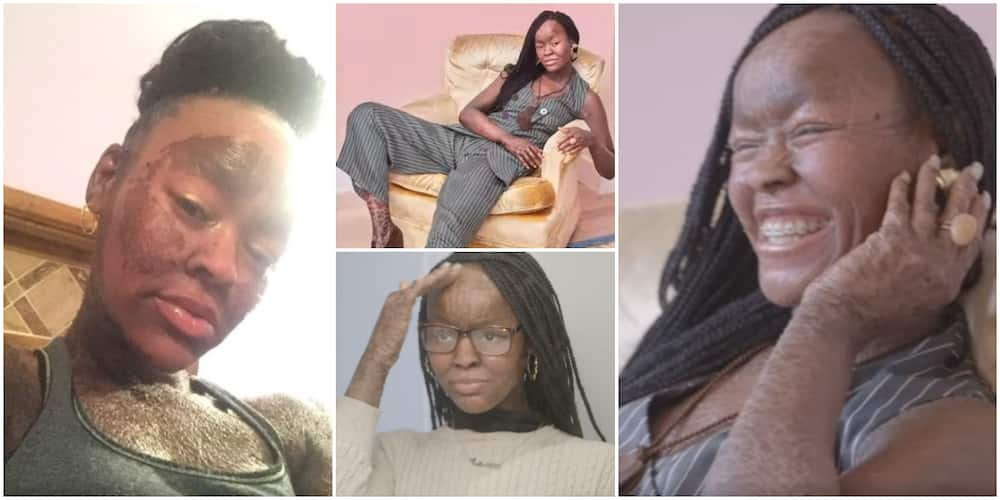 Jeyza: The 21-year-old who sheds skin every 10 days and doesn't sweat