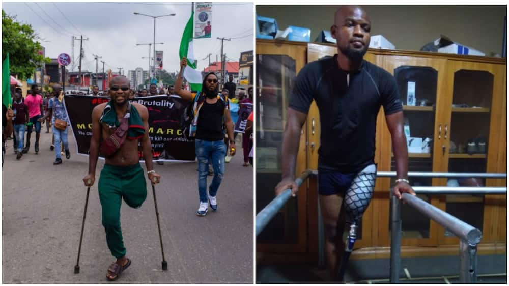 Man who joined protest with 1 leg, gets new prosthetic, money from Nigerians