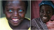 Abushe: The 14-year-old Ethiopian boy with adorable natural blue eyes everyone is talking about