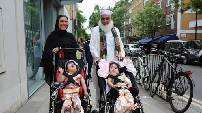 100 doctors successfully separate conjoined twins after 50 hours of surgery in London (photos)
