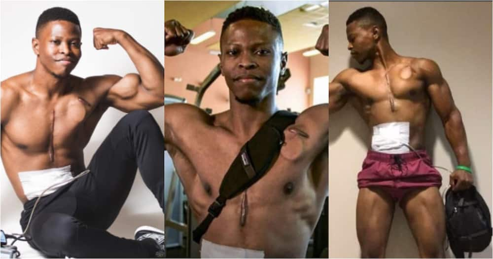 Meet Fitness Model who Walked with an Artificial Heart in His Backpack for Over 2 Years