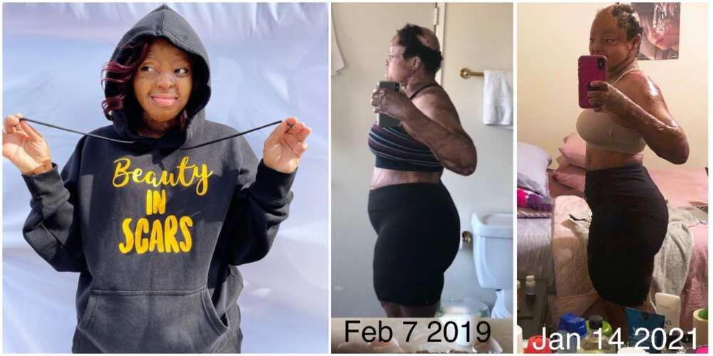 Plane crash survivor Kechi Okwuchi shares body transformation photos