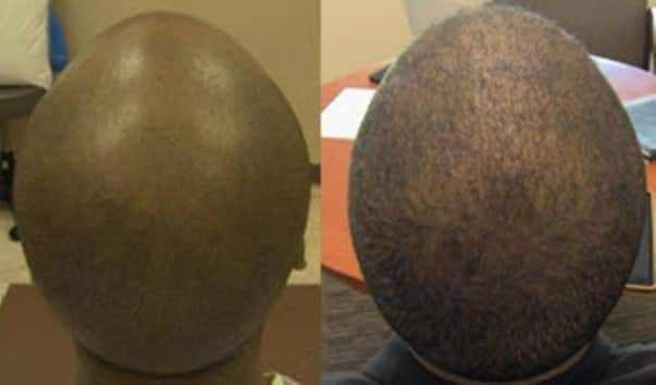 New breakthrough treatment that helps men and women re-grow hair naturally and end baldness