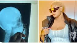 Angela Okorie says pellets still coming out of her head two years after failed assassination