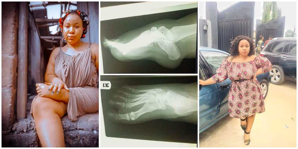 Lady Born with One and Half Leg Says she is Tired of Pains and Injuries, Begs Nigerians to Help Her Walk Again