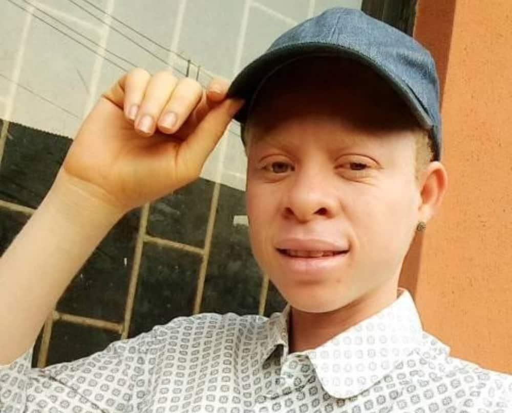 Lady with albinism realises how beautiful she is after years of stigmatisation