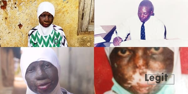 I cannot breathe - Rokeebat needs N2m to save her life from deadly nose infection