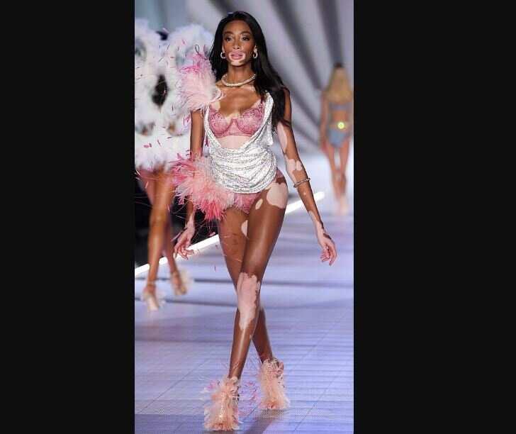 Canadian lady Winnie Harlow becomes first model with vitiligo to walk Victoria's Secret fashion show (photos)
