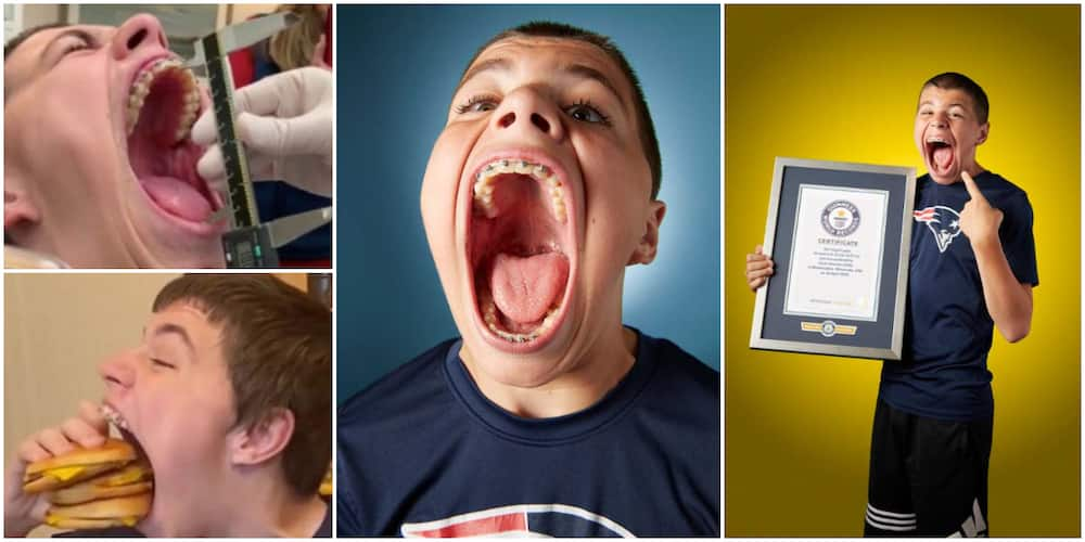 Teenage boy reclaims Guinness World Record of having the widest mouth gape