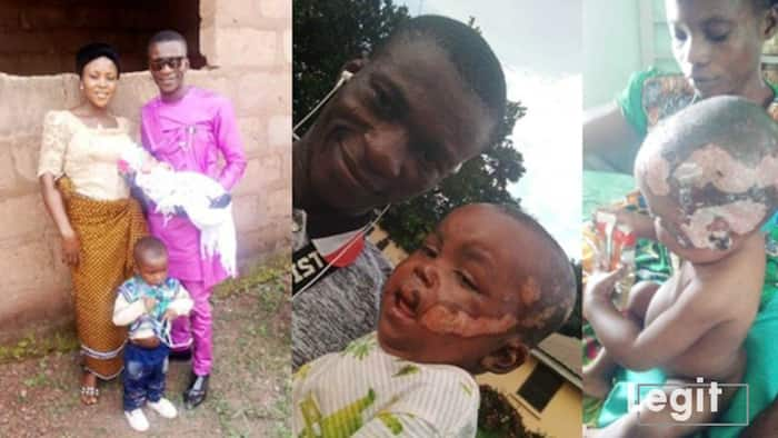 Kenneth Ogagbo: 1-yr-old boy whose mum died of fire burns needs help to beat same injuries