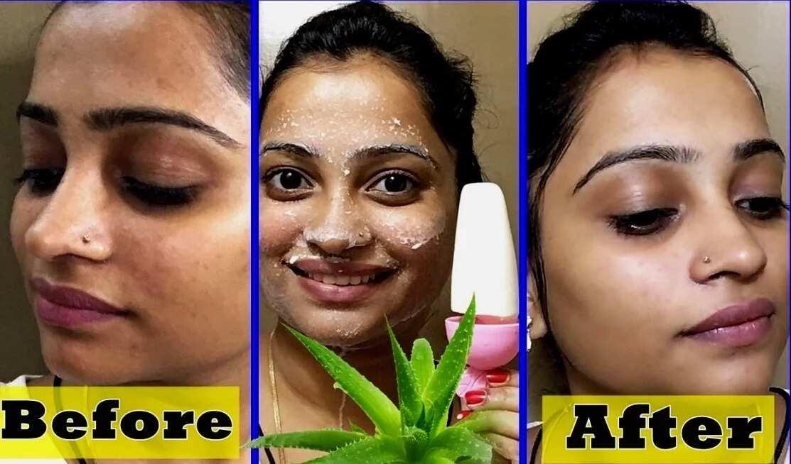 Benefits of Aloe Vera for skin lightening