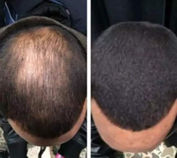 An open letter to every man & woman who wants to cure baldness and re-grow hair in 14 days or less using a Natural Herbal Solution