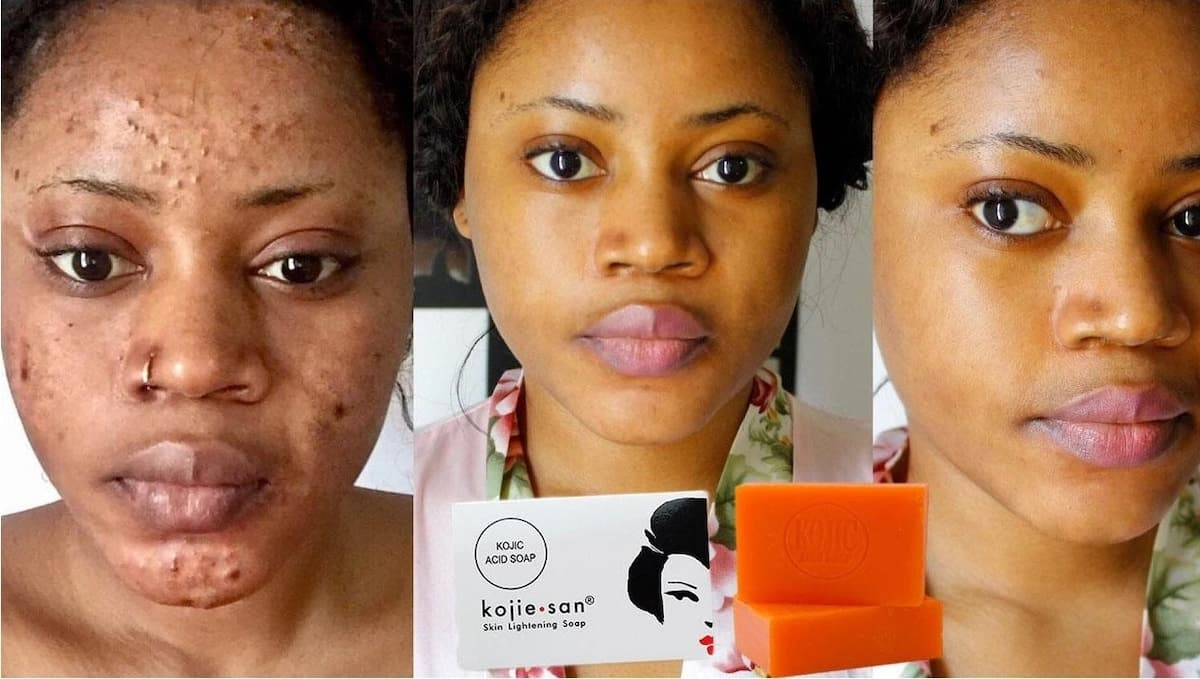 Kojic acid soap side effects