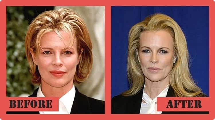Kim basinger photos before and after 5