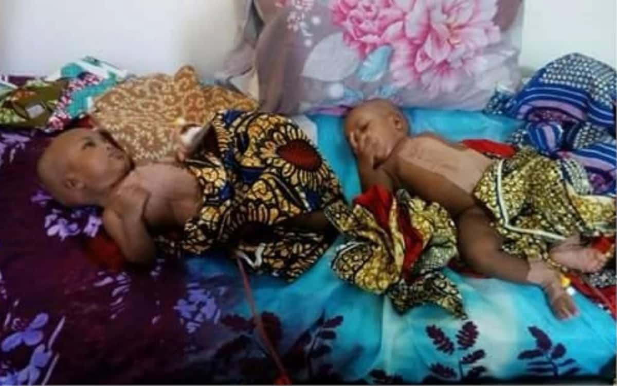 Team of surgeons successfully separate conjoined twins in Yola