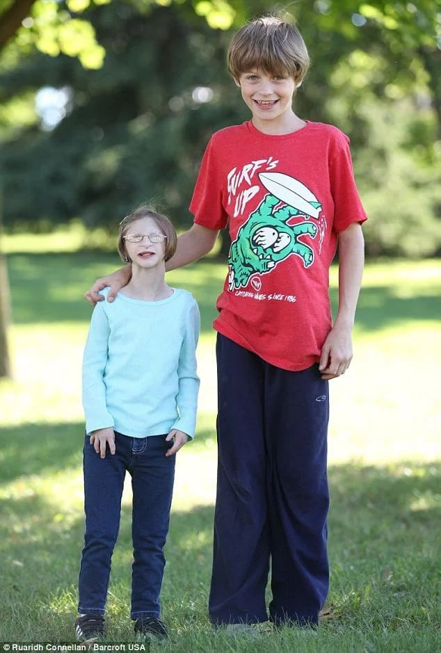 Tiny Girl Born With Rare Form Of Dwarfism Turns 12