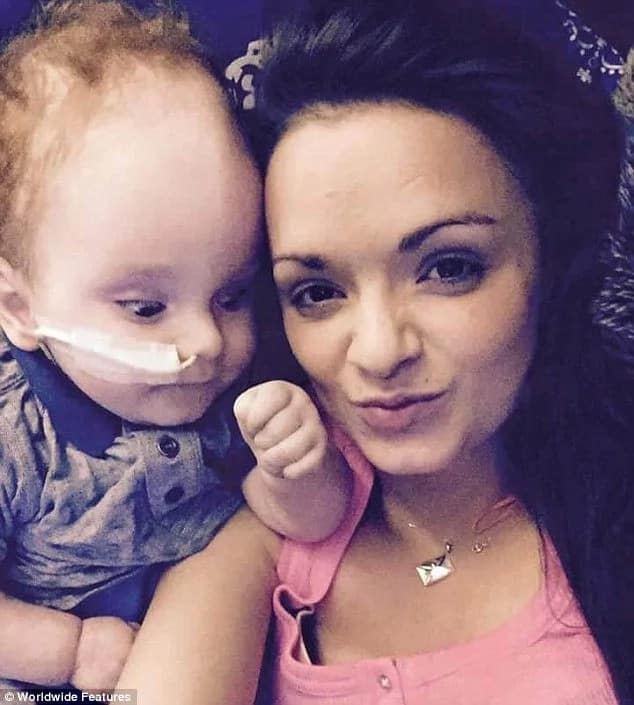 Miracle Baby Born Without Brain Turns Two