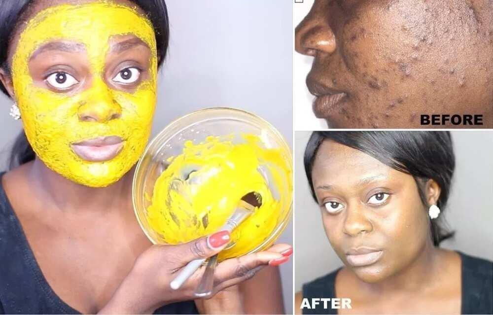 Best turmeric face mask to lighten skin