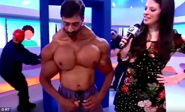 Synthol Bodybuilder Shows His Inflated Muscles ▷ Legit ng