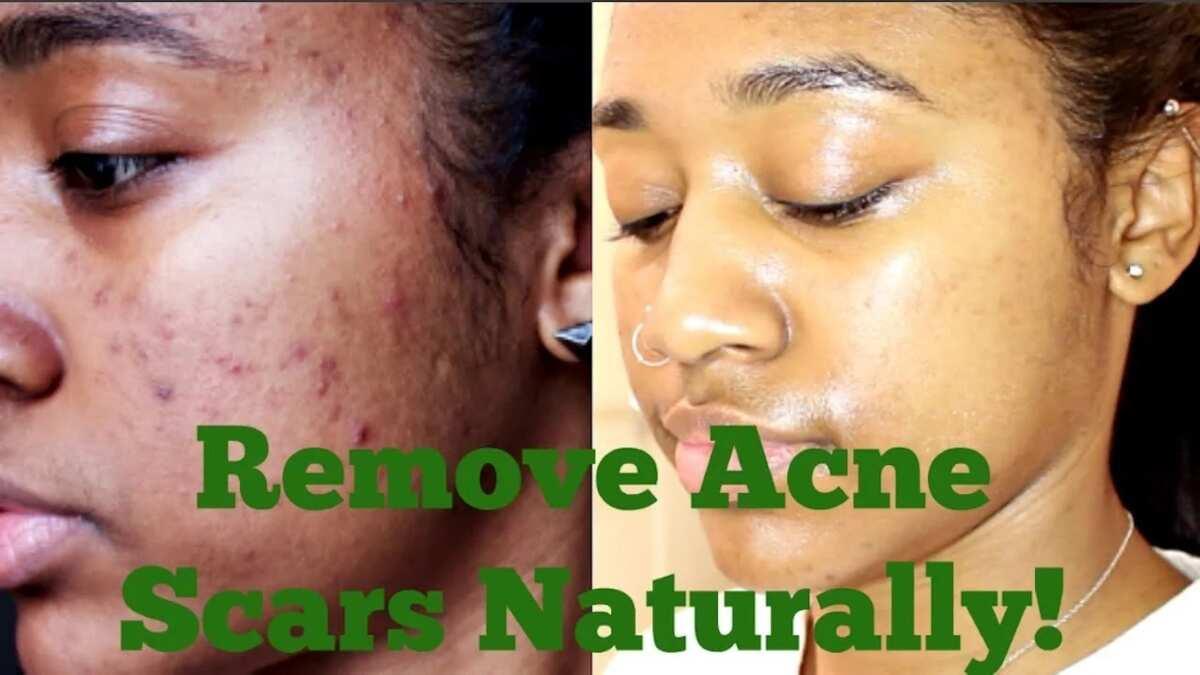 Carrot oil for acne